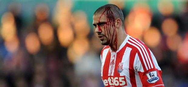 STOKE ON TRENT, ENGLAND - NOVEMBER 10: Jonathan Walters of Stoke City leaves the field with a cut head during the Barclays Premier League match between Stoke City and Queens Park Rangers at Britannia Stadium on November 10, 2012 in Stoke on Trent, England. (Photo by Chris Brunskill/Getty Images)