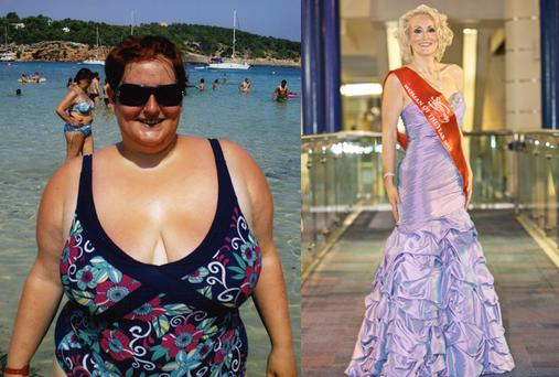Claire Alsop, 31, from Rotherham, South Yorkshire has lost more than half her body weight. Photos: PA.