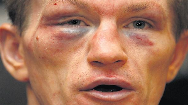 Ricky Hatton's face shows the full effects of his defeat to Vyacheslav Senchenko