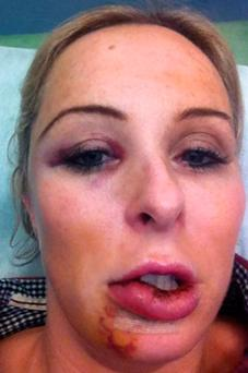 Danielle Meagher after facial injuries suffered in fall from bicycle rickshaw