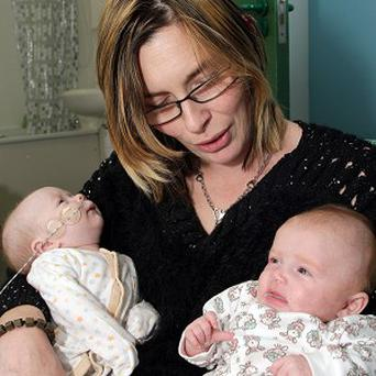 Maureen Roberts's twins Isabel (left) and Alexandra (right) after Isabel underwent a pioneering operation