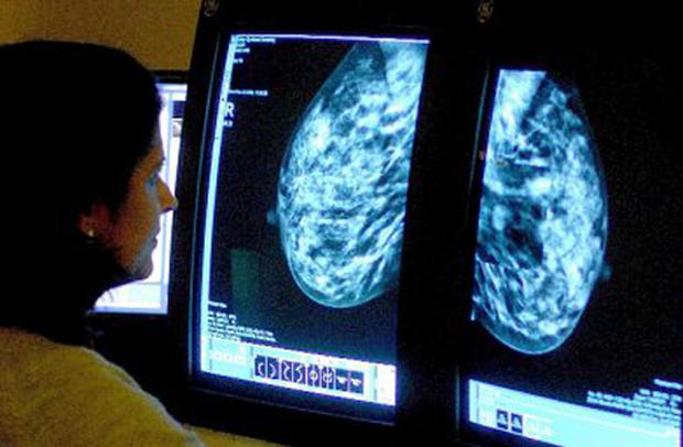 BreastCheck, the free cancer screening programme (Stock image)