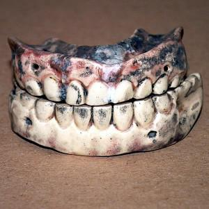 False teeth are among items commonly left behind in hotel rooms