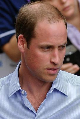 Prince William has been losing his hair in recent years
