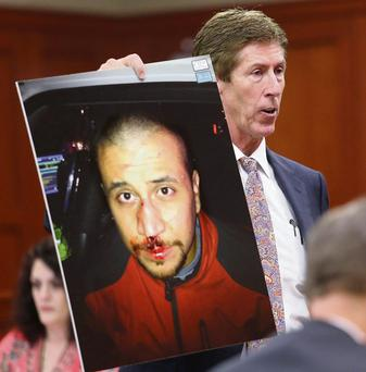 IN THE FRAME: Irish-American attorney Mark O'Mara holds up a photo of George Zimmerman from the night of the Trayvon Martin shooting during his client's trial