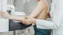When the national breast screening service - which was paused in March due to Covid-19 - resumes shortly, the gap between X-rays will be three years initially (stock photo)