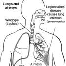 A closer look at the effects of Legionnaires' disease