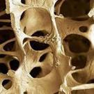With osteoporosis, bone density is reduced and there is an increased risk of fracture