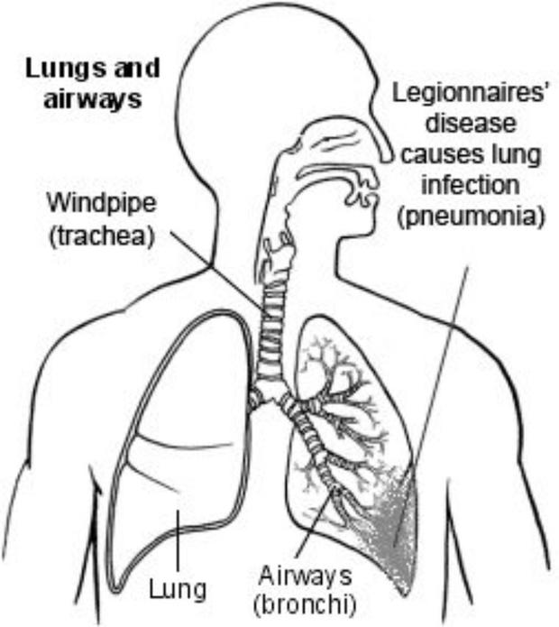 Legionnaires' Disease is a lung disease