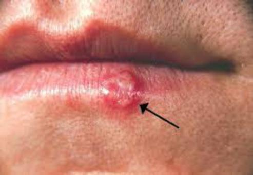Cold sores are easily spread and are triggered by many things including stress, fever, menstruation and UV light.