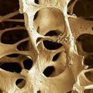 Osteoporosis means 'porous bones', where bone density is reduced and there is an increased risk of fracture