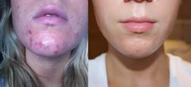 Natures Aid Pro Derma is a new supplement that can help mild to moderate acne