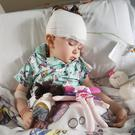 Zoe in hospital undergoing treatment for her condition