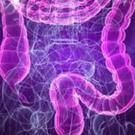 Symptoms of IBS can include stomach cramps, stomach-ache, discomfort, flatulence, bloating, constipation, diarrhoea, and nausea