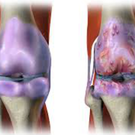 Joint damage (right) caused by osteoarthritis