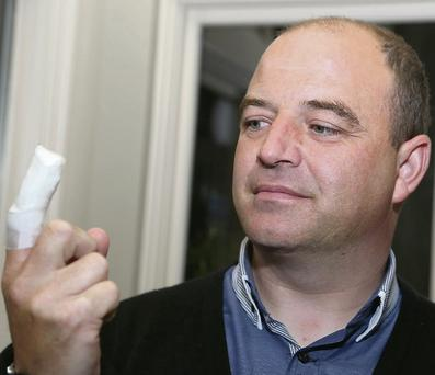 Cllr John O'Rourke shows off his sore finger.