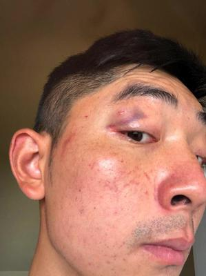 Martin Hong said he was assaulted by three teenagers