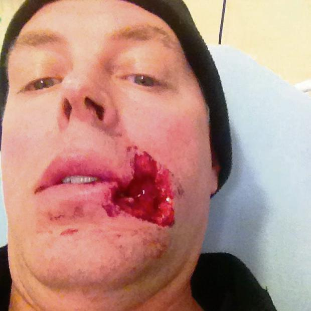 HORROR: Jimmy Griffin with the horrific wound.