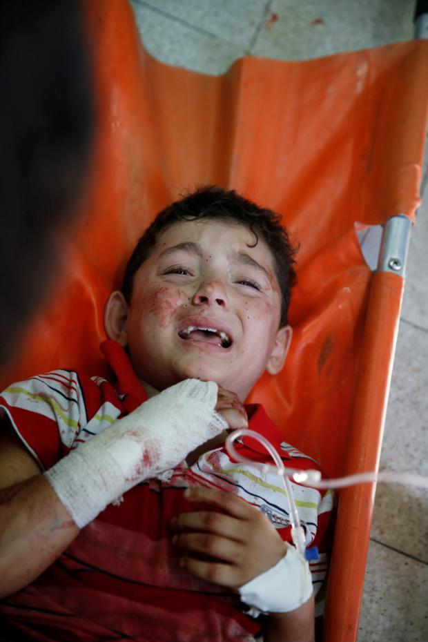 A Palestinian child, wounded in an Israeli strike on a compound housing a U.N. school in Beit Hanoun, in the northern Gaza Strip, cries at the emergency room of the Kamal Adwan hospital in Beit Lahiya. AP
