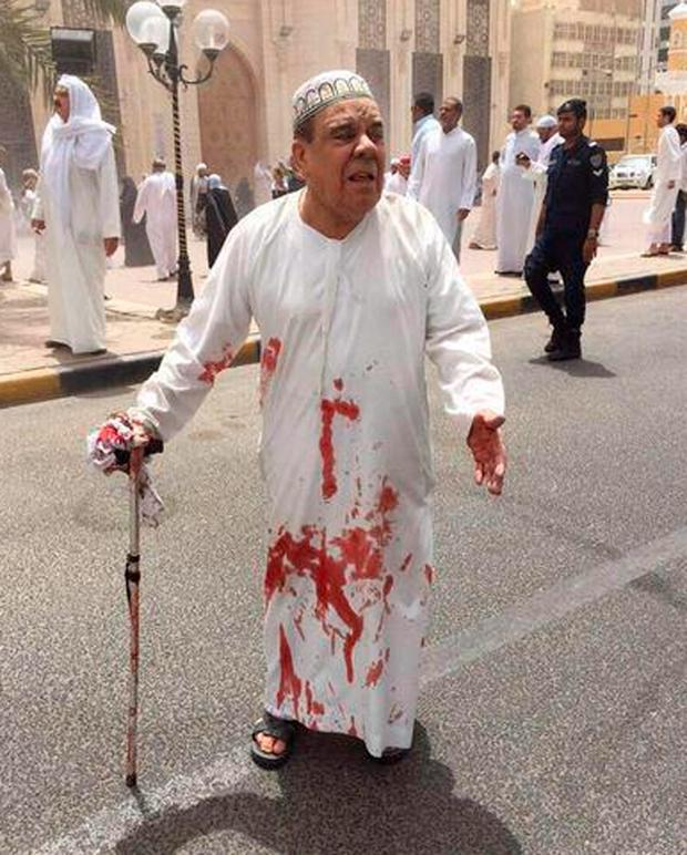 This image provided by Kuwaitna news shows a man in a blood-soaked dishdasha following of a deadly blast at a Shiite mouse in Kuwait City
