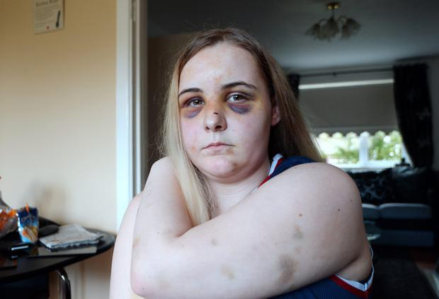 Diana Mongan, 17, shows her injuries