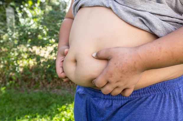 Ireland is set to become the most obese nation in Europe