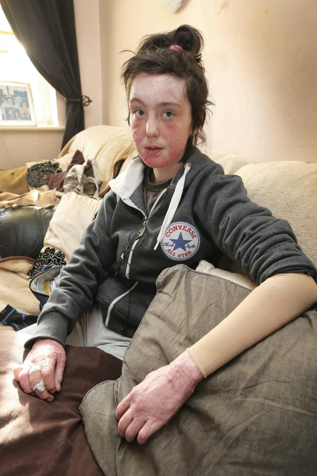 Jessica Woods suffered severe burns due to the explosion