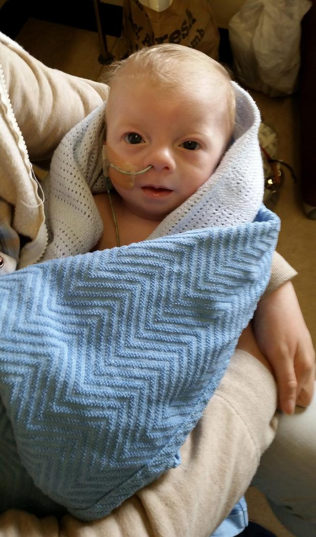 Baby Noah Doyle requires ongoing care. Photo: Ciara Wilkinson