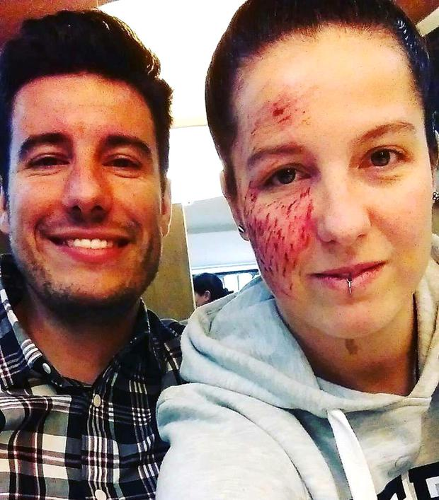 Alba Pardo's her wounds are slowly beginning to heal