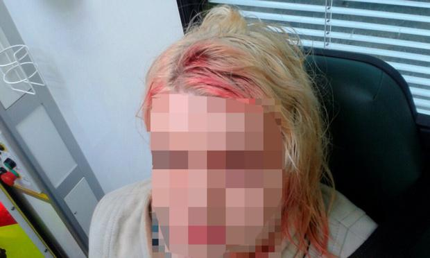 The woman suffered a two-inch gash to her head