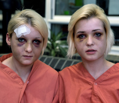 Sisters Nicole and Amy Rice shortly after they were assaulted Photo: Arthur Carron