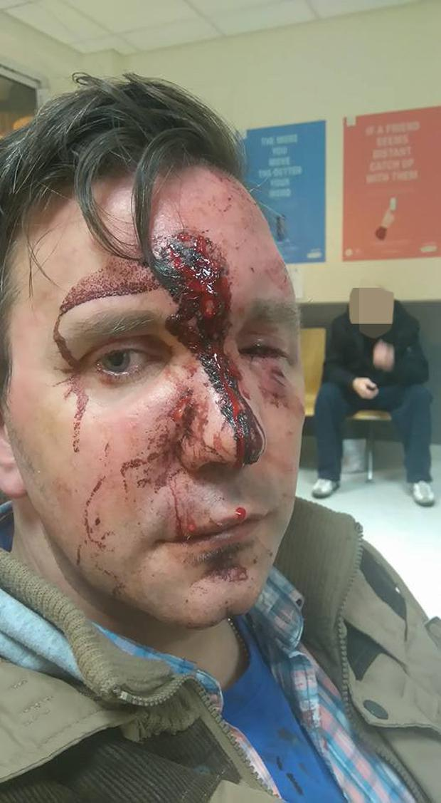 Victim Simon Cleary was attacked after getting off the Luas at Tallaght