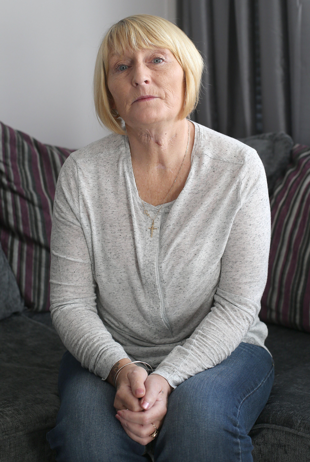 Dublin grandmother and attack victim Rose Kenny has appealed to Leo Varadkar for help Photo: Damien Eagers