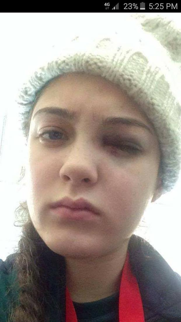 The black eye Mary Kate received in the horrifying attack
