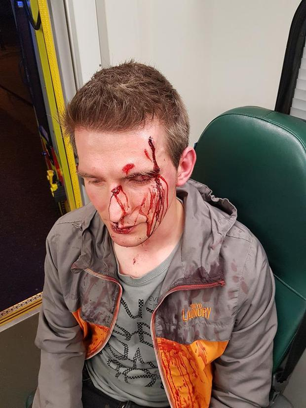 Taste of Dublin barman Leon Redlinski who was beaten and robbed by a gang of teens in Fingals on his way home from work at the event