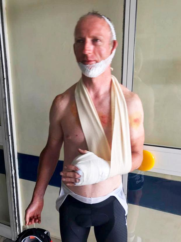 Cahir O'Higgins posted this photo of himself after he was knocked off his bike in Greece