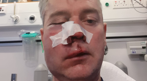 Midlands referee Daniel Sweeney is still undergoing treatment for his injuries