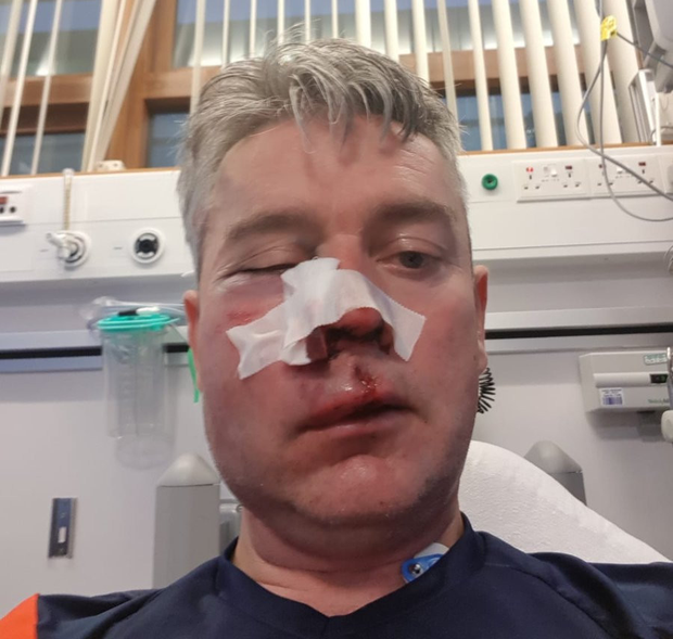 Daniel Sweeney (pictured) suffered horrific injuries to his face in the attack by Dean Dinnegan