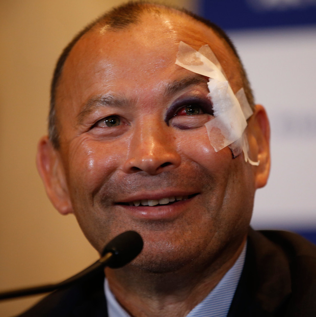 England Head Coach Eddie Jones speaks to the media during the Six Nations launch