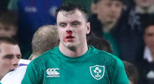 Bloodied but not beaten: James Ryan shows the cost of Saturday's bruising clash