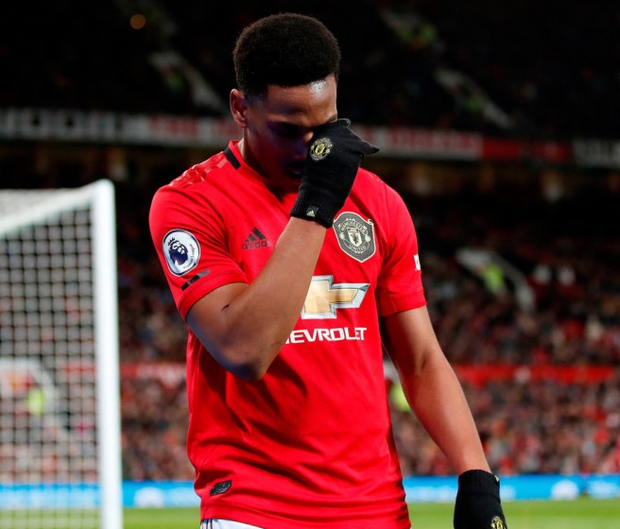 Anthony Martial should be able to play in the derby