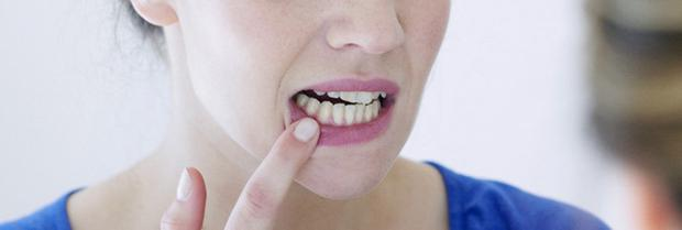 Mouth ulcers can be caused by a range of factors