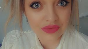 Tralee woman Marlena Ciniecka is fundraising to have surgery in her native Poland on her Fibrous Displaysia whic has caused three cysts to grow on her skull.