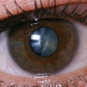 Official figures reveal that 156 Kerry patients are currently awaiting treatment for cataracts, and 798 are on the waiting list for an operation at Cork's South Infirmary-Victoria University Hospital