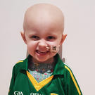 The family of two-year-old Siobhán Mather are fundraising for her US treatment