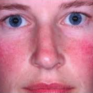 Rosacea most commonly affects the blush area of the face including the nose and cheek area