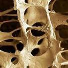 Supplements and exercises can help prevent and treat osteoporosis