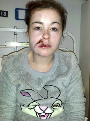 Nicole Dwyer pictured in January 2014 when she was attacked with a hatchet.