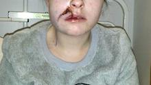 Nicole Dwyer pictured in hospital after the assault last year.