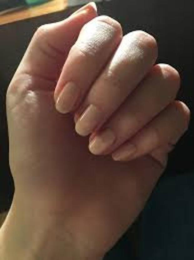 How are your nails?